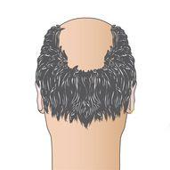 trapianto-capelli-passo-00