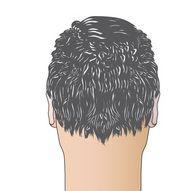 trapianto-capelli-passo-07