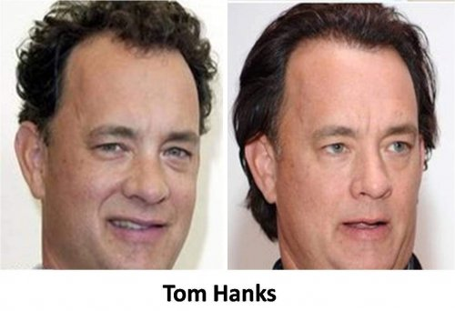 Tom-Hanks trapianto capelli vip