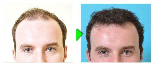 Trapianto capelli foto paziente 2 - frontale