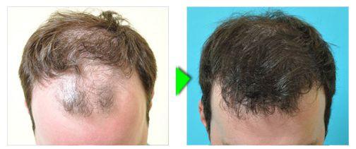 Trapianto capelli foto paziente 2 - craniale