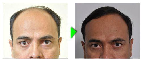 Trapianto capelli foto paziente 3 -  frontale
