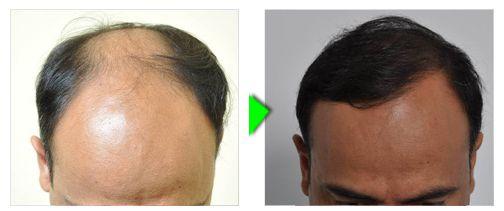 Trapianto capelli foto paziente 3 -  craniale