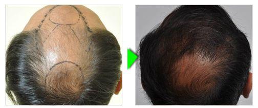 Trapianto capelli foto paziente 3 -  posteriore