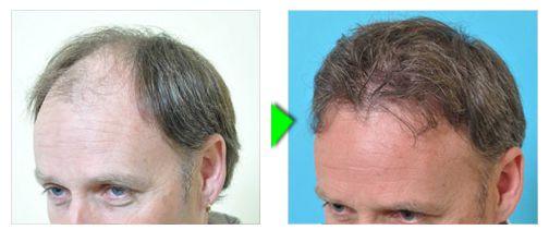 Trapianto capelli foto paziente 4 -  laterale