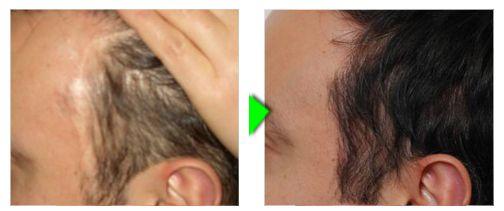 Trapianto capelli foto paziente 5