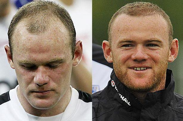 Wayne-Rooney-trapianto-capelli
