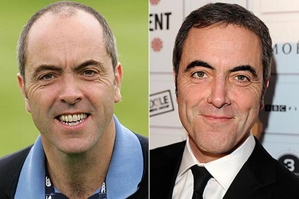 james-nesbitt -Trapianto capelli