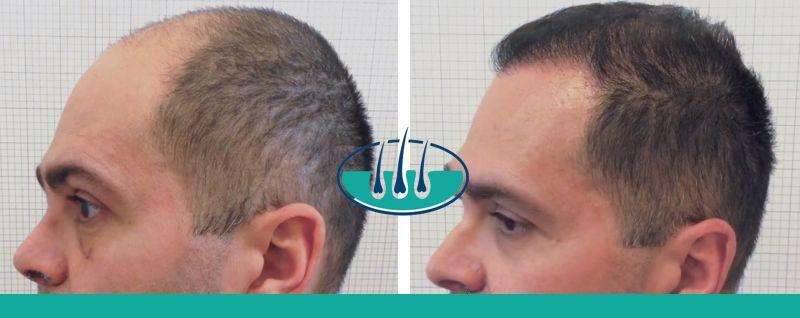 Montebelluna: Costo del trapianto capelli