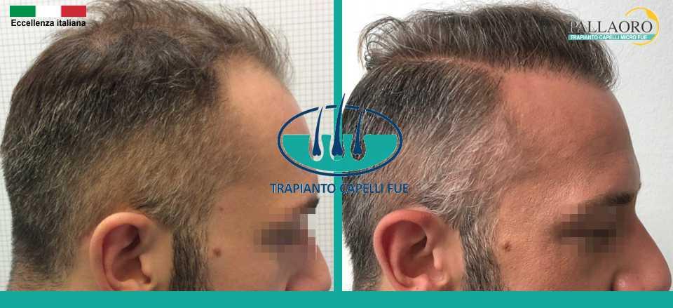 Trapianto capelli Milano: Ecco il risultato che puoi ottenere!